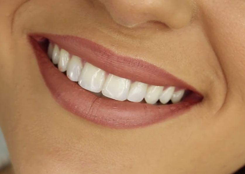 All You Should Know About Teeth Whitening Strips